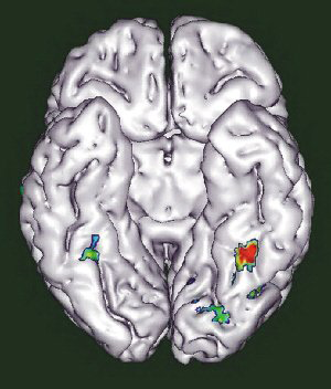 图中标注出来的区域与阅读和面部识别有关